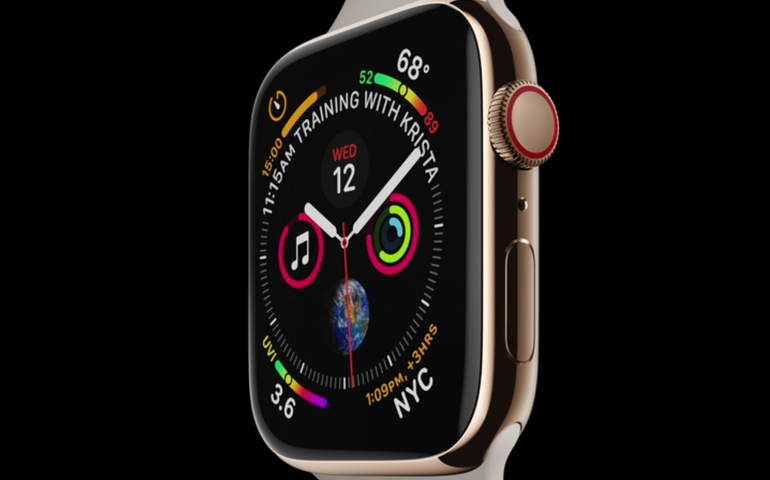 Apple Watch ECG app: How it works and what it means for the future of health